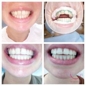 Rezultati izbjeljivanja zubi