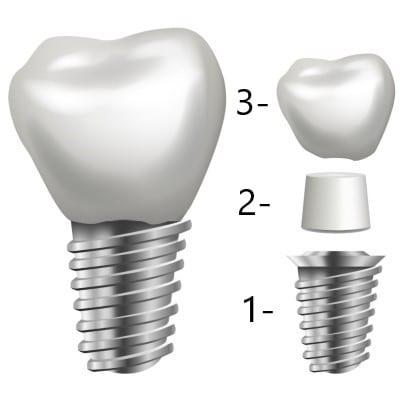 Zaštita implantata
