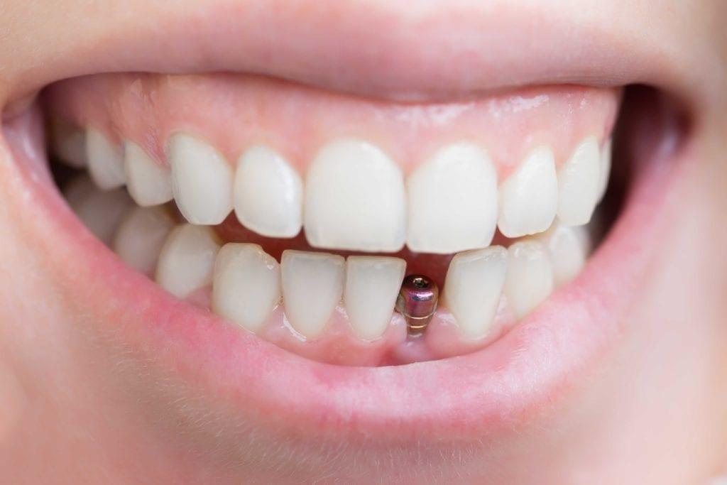 Cijena zubnih implantata