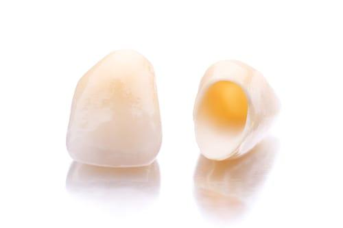 Bezmetalna zubna keramika zagreb