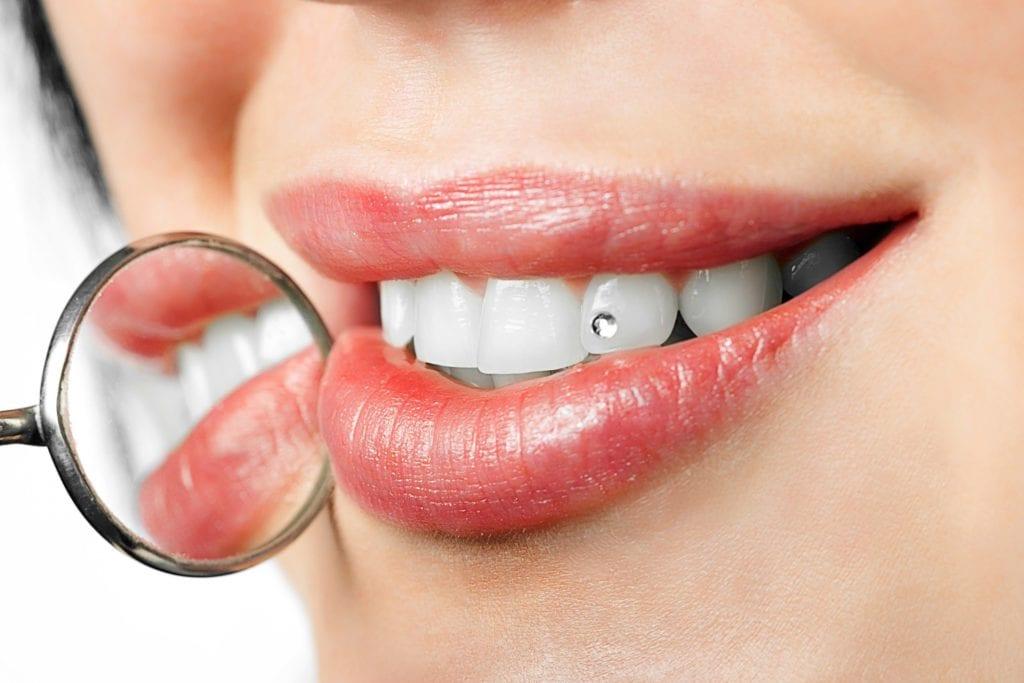 cirkoni za zube