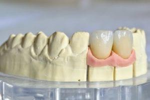 zubne krunice Zagreb