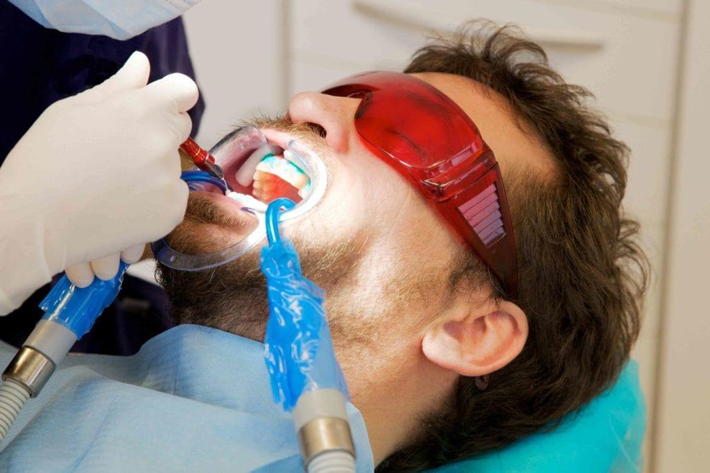 izbjeljivanje zubi cijena
