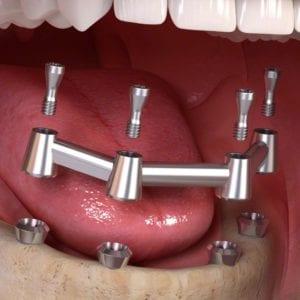Zubna proteza na ankerima ili na prečkama