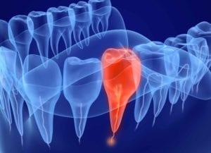 endodoncija cijena