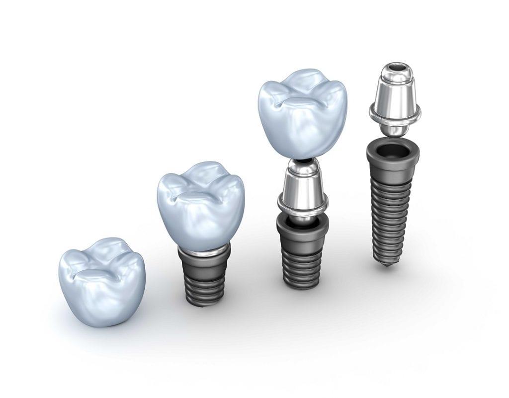 Zašto ugraditi zubne implantate