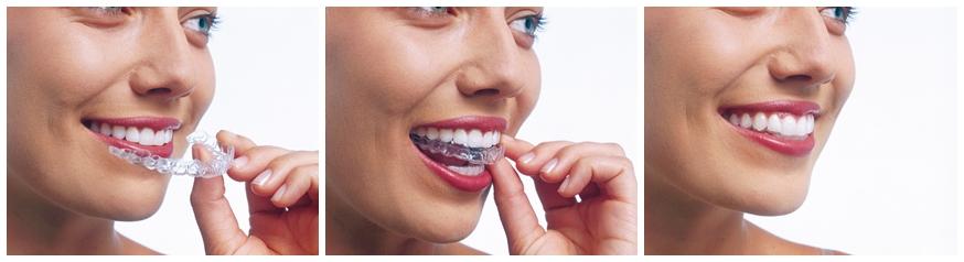 Dentalni centar Videntis Invisalign aligner