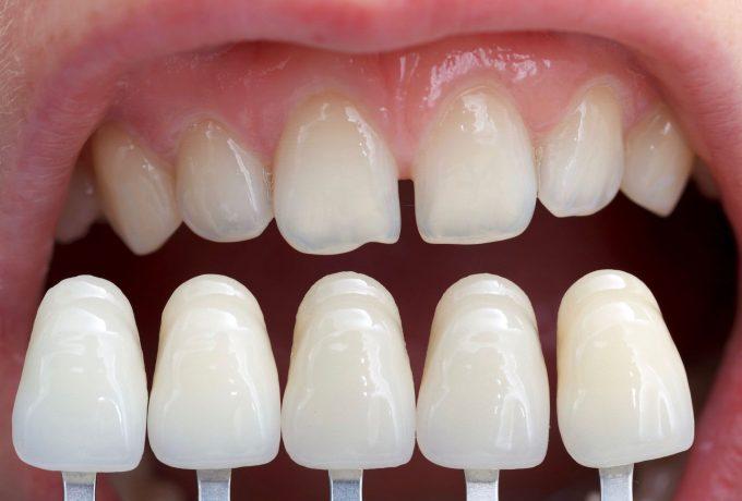 videntis-stomatolog-zagreb-ljuskice-za zube - foto 4